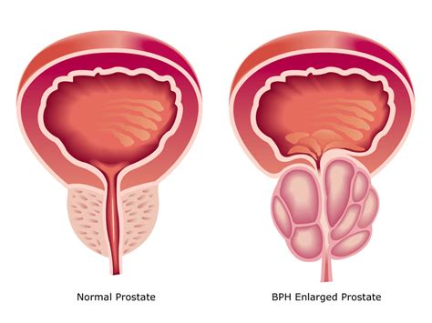 Relieve BPH Without Drugs or Surgery